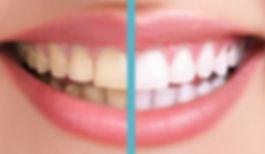 teeth-whitening norwalk CT.jpg