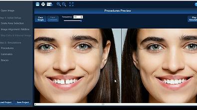 digital smile design simulator.jpg