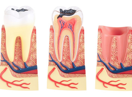 Tooth Decay Symptoms, Causes and Treatment in Norwalk, CT