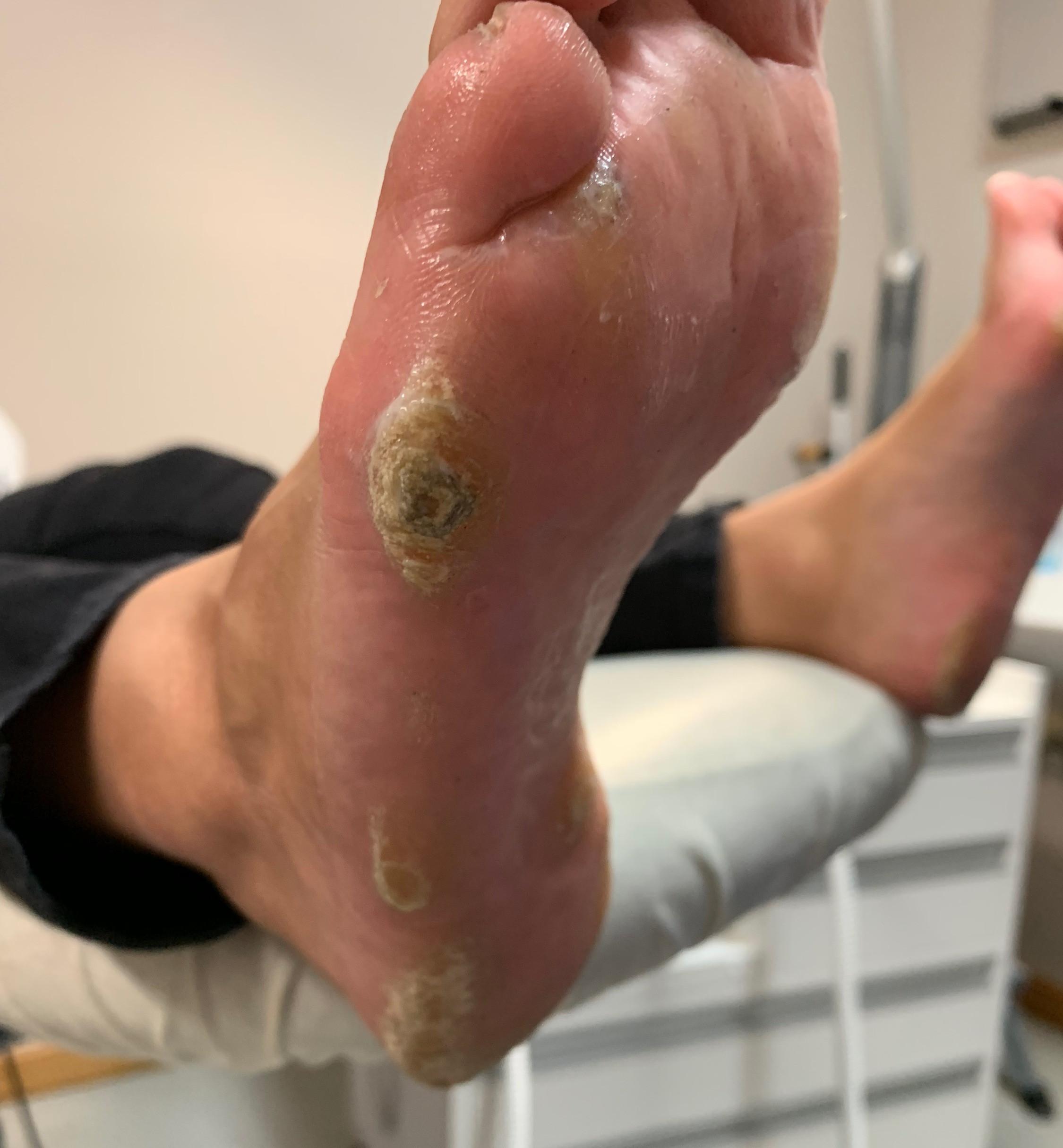 Skin callus