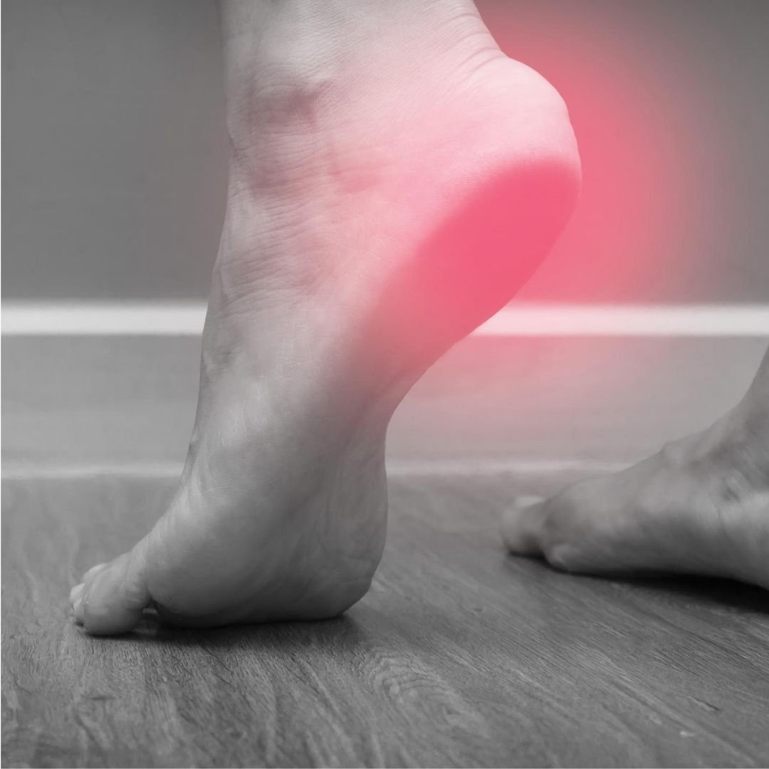 Heel and Arch Pain