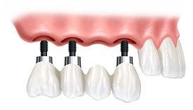 Ponte Sobre Implantes