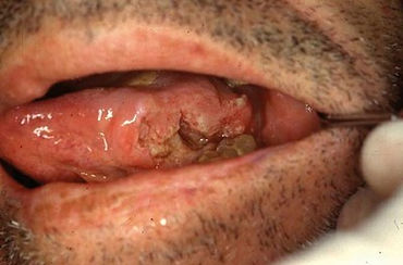 Carcinoma da Lingua