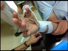 terapia da mão