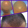 One Month After Hair Surgery