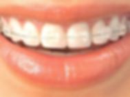 Aparelho Dentário, Ortodontia