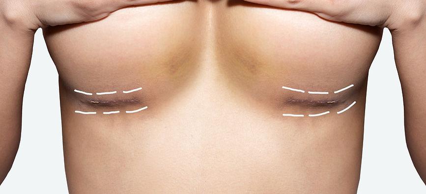 Cicatriz Mamoplastia
