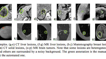 Generalizable adaptive lesion segmentation framework