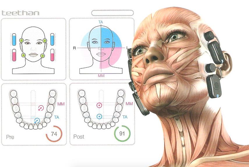 анализ окклюзии зубов