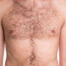 body-hair-transplant.jpg