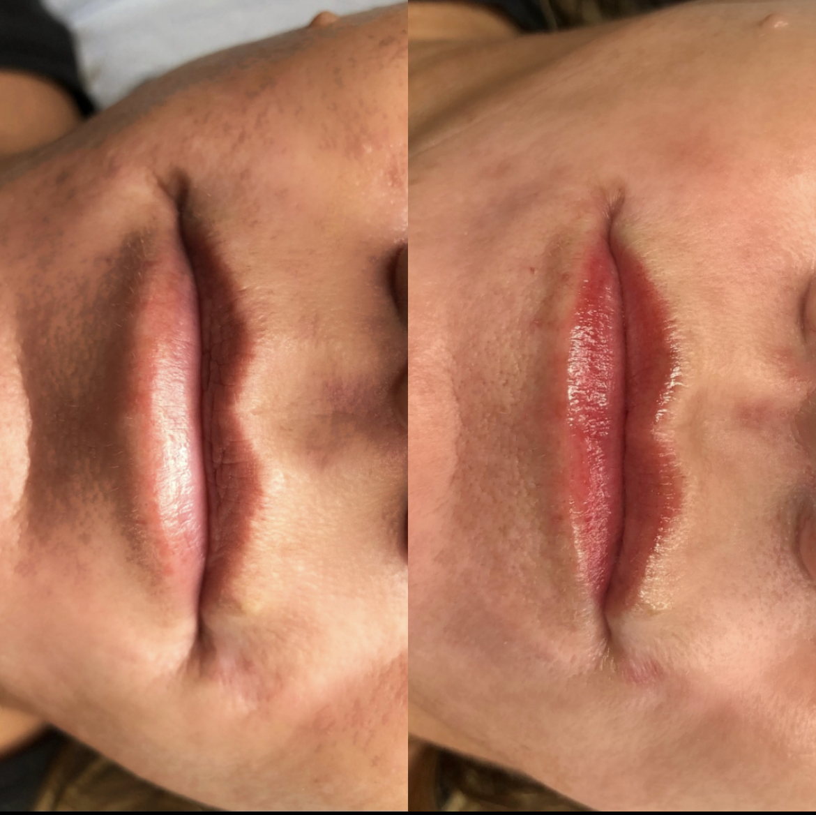 Lip Blushing Before and After | Bronzed Humanity