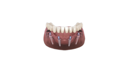 All on 4 Dental implant.png