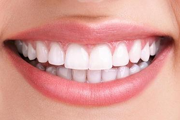 teeth-whitening-after-1.jpg