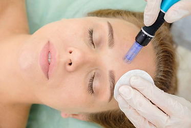 the-pros-and-cons-of-microneedling.jpeg