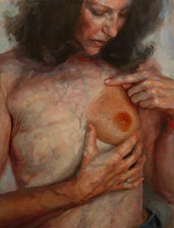 Menges,Elizabeth_C with prostheis_2007