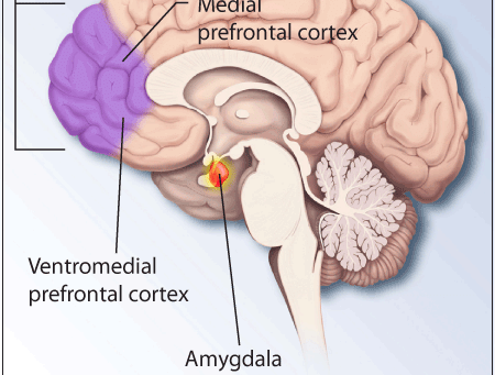 The Amygdala Hijack.