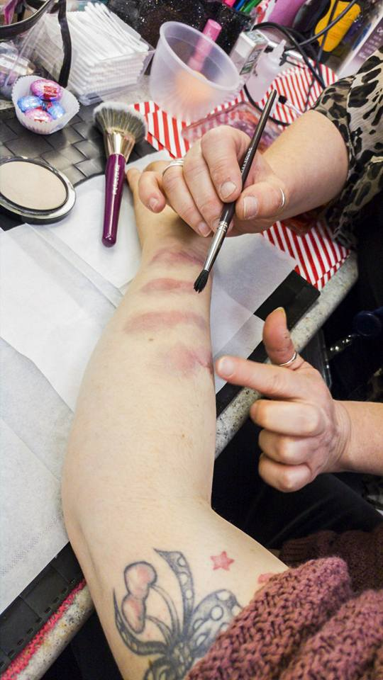 The first step to creating bruises