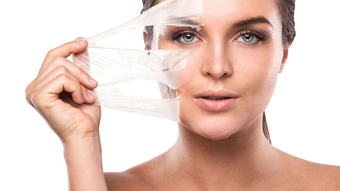 chemical-peels-1170x658.jpg
