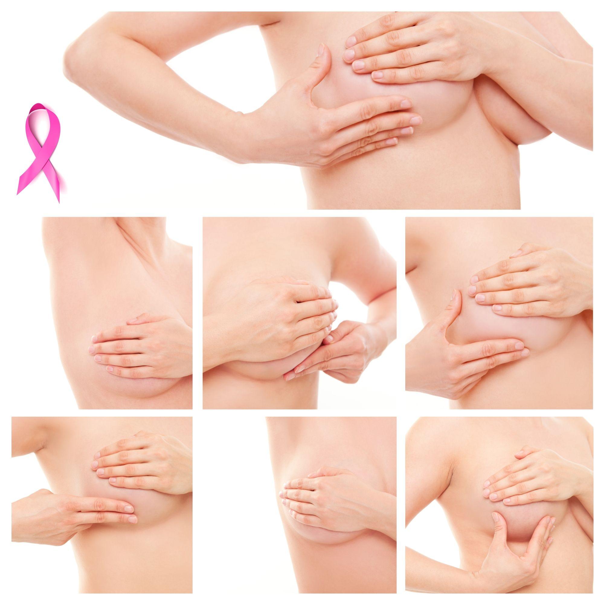 Cómo-hacerse-el-examen-de-cáncer-de-mama
