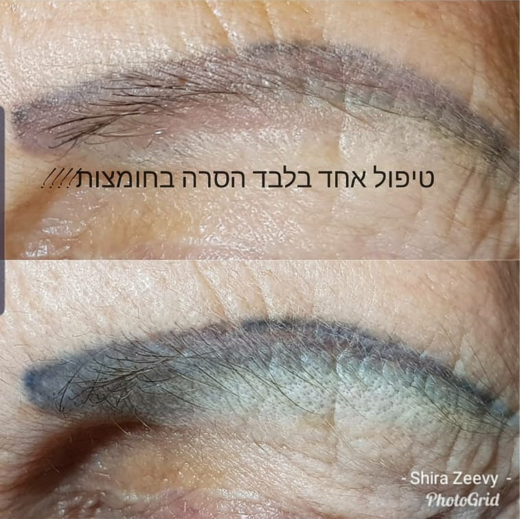הסרת איפור קבוע תיקון איפור קבוע