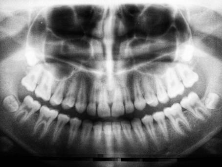 Das Zähneknirschen hat zugenommen