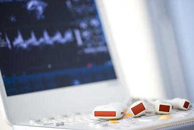 Exames Cardiosport - Ecocardiograma