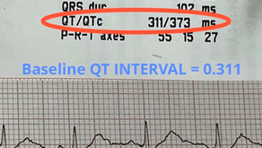 Near death experience with  Hydroxychloroquine