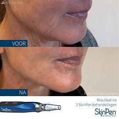 SkinPen voor en na 2 behandelingen klinieklumiere.jpg
