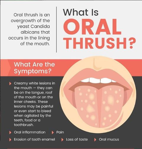Oral Thrush Teeth Oral problems diseases