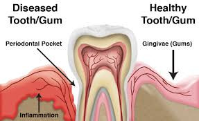 Gum Diseases Mouth Demon