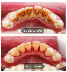 scaling or cleaning of teeth myths and facts cleaning teeth