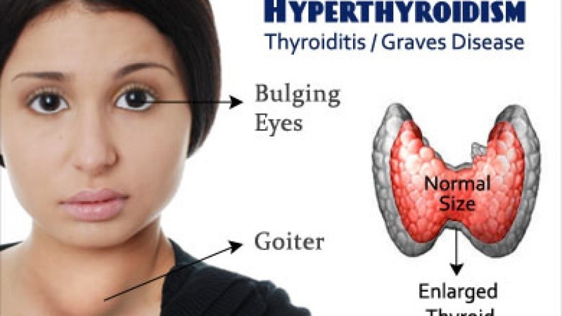 hyperthyroidism thyroid type causes symptoms diagnosis treatment