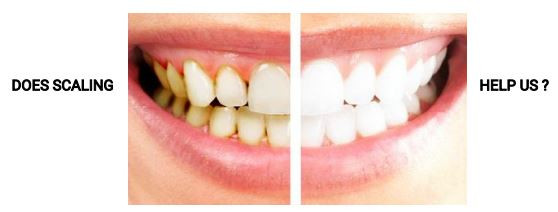 Scaling Cleaning of teeth myths facts harmful