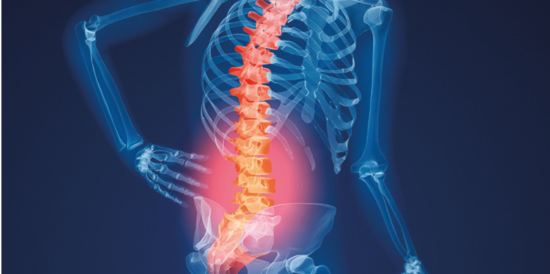 Osteopenia is not same as osteoporosis