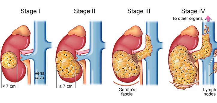 Kidney Cancer Cause treatment solution reason stage