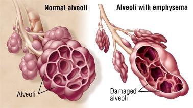 Alveoli emphysema