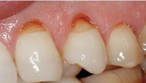 Teeth cervical abrasion do not force toothbrush
