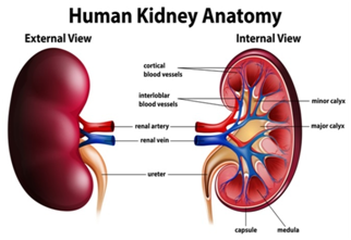 Kidney Cancer Cause treatment solution reason anatomy