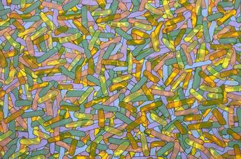 6 kleuren acryltoetsen - 2015