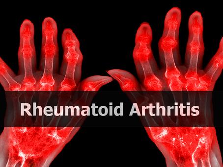 Rheumatoid Arthritis Finds Two Novel Therapeutic Targets