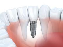 Ihr Fachlabor für Implantologie - Stroh & Scheuerpflug