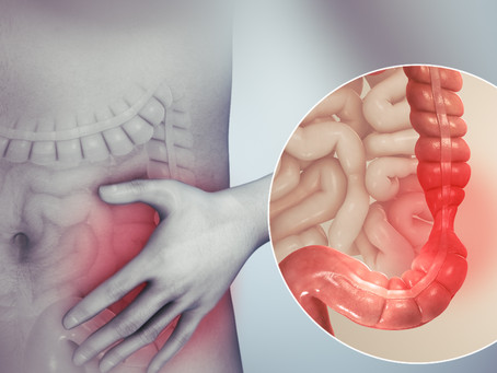 IBS and SIBO Differences