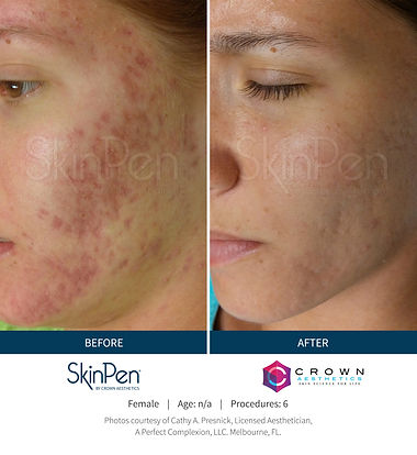 Skinpen Before-and-After-Picture 2.jpg