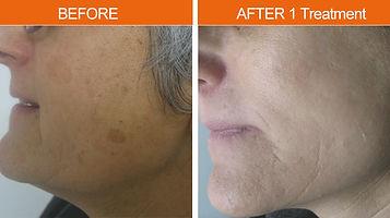IPL- Pigmented Lesions - 1 treatment.jpg