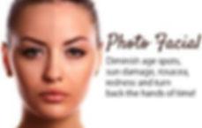 photofacial 1.jpg