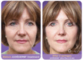 juvederm-before-after1.jpg