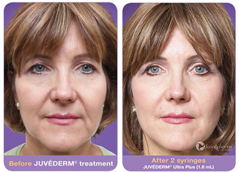 juvederm-before-after1.jpg