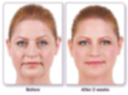 Juvederm Before & After.JPG