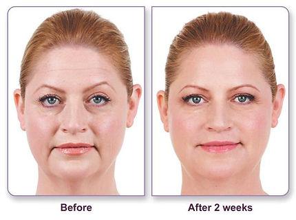 Juvederm Before & After.JPG