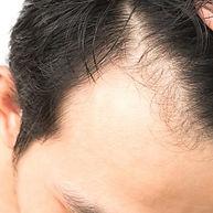 hair-loss-300x300.jpg